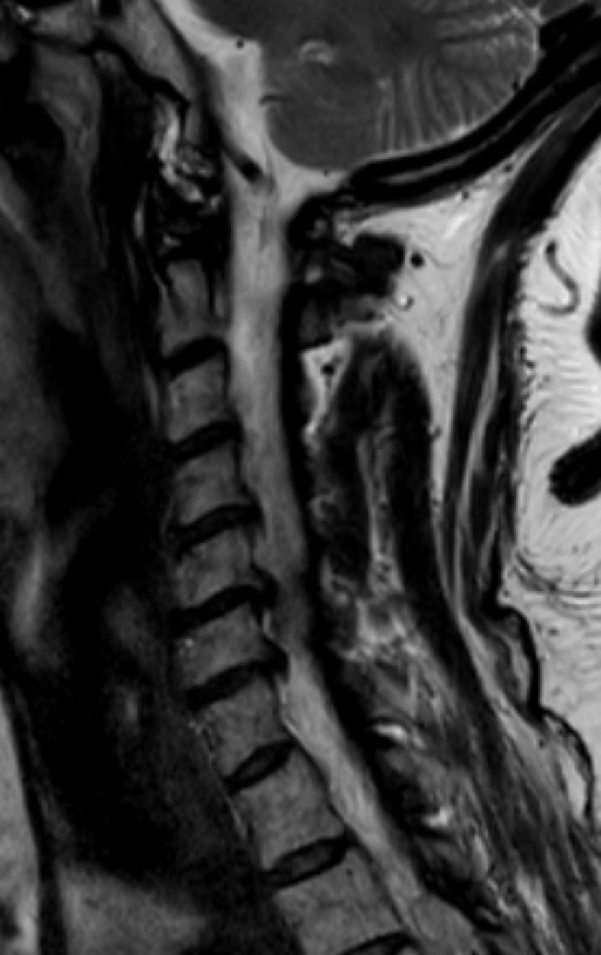 herniadiscalcervicalresonanciamultinivel.jpg